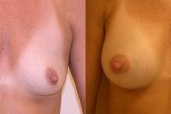 Boston Breast Augmentation