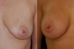Breast Augmentation Surgeon Boston