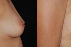Best Breast Augmentation