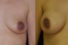 Boston Breast Implants