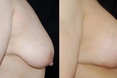 Best Breast Lift