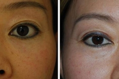 Undereye Circle Removal