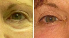 Get rid of undereye bags