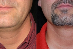 Boston chin liposuction