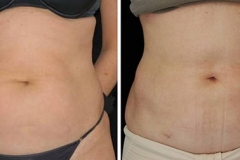 Boston laser liposuction