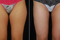 Hip liposuction