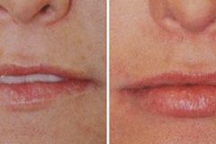 Best Lip Augmentation