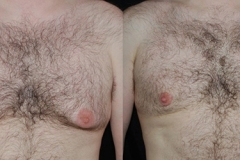 Boston gynecomastia surgery