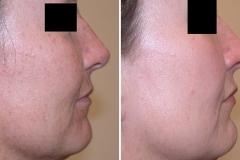 Facial Microdermabrasion