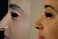 Best Rhinoplasty