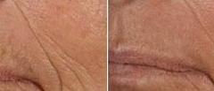 Remove Lip Lines