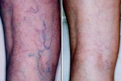 Vein Treatment