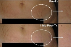 Stretch mark removal boston