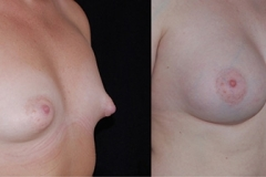 Tuberous Breast Surgery