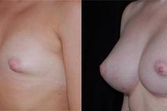 Boston Tuberous Breast Correction