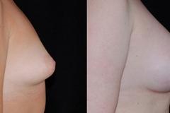 Boston Tuberous Breast Surgeon