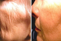 Boston wrinkle removal