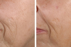 Laser wrinkle treatments