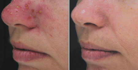 Before and after acne control treatment microdermabrasion exfoliation, topical clindamycin® and RetinA®