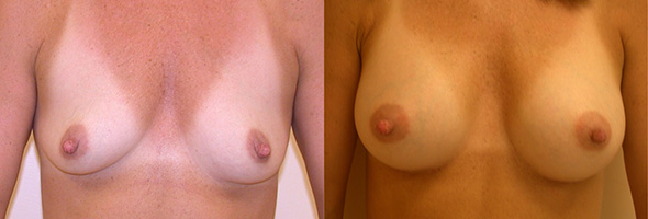 Before and after breast augmentation after breast-feeding for a natural breast enlargement