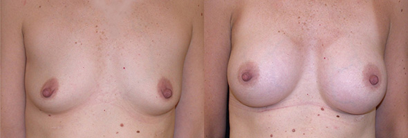 Breasts before and after sub muscular breast augmentation with 250 cc gummy bear silicone implants
