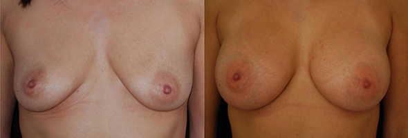 Breasts before and after sub glandular breast augmentation with 350 cc gummy bear implants