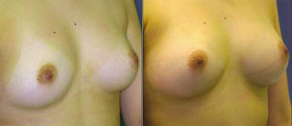 Before and after natural breast augmentation with fat injection or grafting