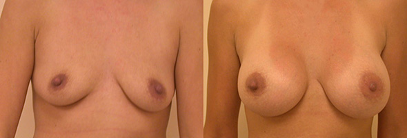 Breasts before and after breast implants after breast feeding