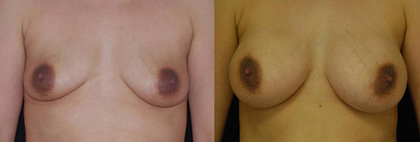 Before and after breast augmentation to restore full natural breasts after breastfeeding