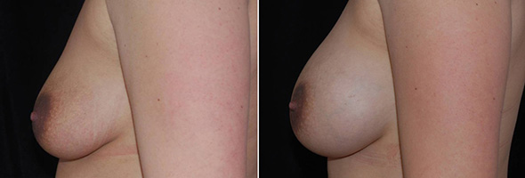 Breasts before and after breast augmentation to restore full natural breasts after breast-feeding