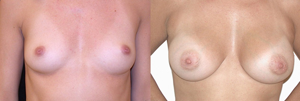 Before and after sub muscular breast augmentation with 300 cc gummy bear implants