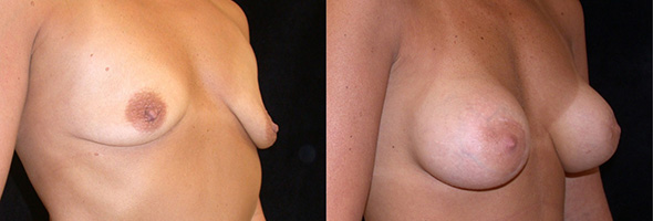 Breasts before and after sub glandular breast augmentation to restore a full breast after breastfeeding