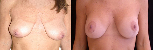 Breasts before and after breast lift and implants to restore the breast after breastfeeding