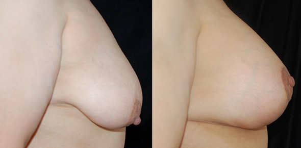 Before and after mastopexy or breast lift and breast augmentation