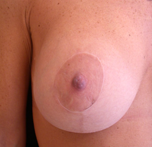 After photo of a well healed breast lift scar