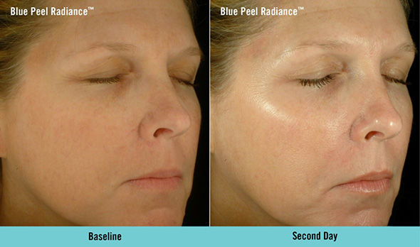 Before and after Obagi® Blue Peel