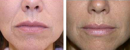 Before and after lip enhancement or augmentation and correction of nasolabial folds with Restylane® dermal filler injection
