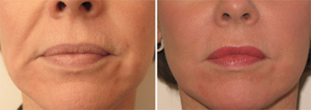 Before and after liquid facelift with Radiesse®, Restylane® and Botox® to remove nasolabial fold lines, marionette lines, lip augmentation and remove lip lines