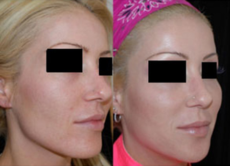 Before and after Sculptra® dermal filler injection for facial rejuvenation and bio stimulation