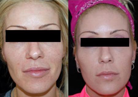 Face before and after Sculptra® dermal filler injection for facial rejuvenation