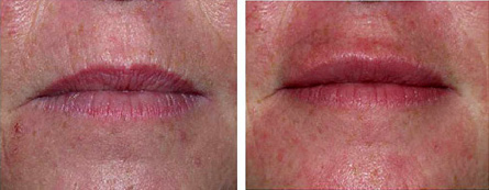 Lips before and after lip augmentation with Restylane®