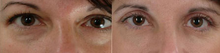 Before and after removal of dark circles under the eyes