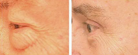 Before and after lower blepharoplasty to remove eye bags and upper blepharoplasty to remove eye hoods