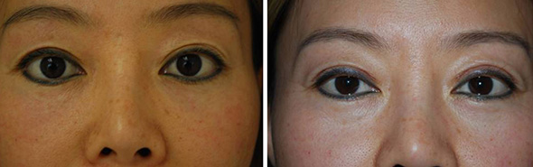 Asian eyelid surgery before and after upper and lower Asian Blepharoplasty to remove lower eyelid bags and upper eyelid hooding and deepen double eyelid fold