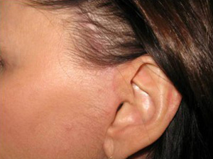 After facelift scar hidden inside ear, behind ear and in the hair