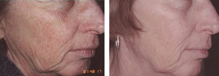 Face before and after photo rejuvenation, photo facial or IPL to remove pigment, wrinkles and skin aging