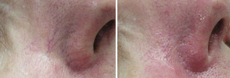 Before and after IPL or photo facial treatment to remove blood vessels from face
