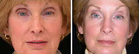 Before and after ablative laser resurfacing of face to remove wrinkles
