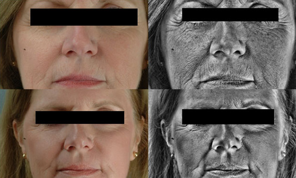 Face Visio image before and after ablative laser resurfacing to remove wrinkles and brown spots