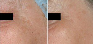 Before and after fractional non-ablative laser resurfacing to remove wrinkles and crow's feet